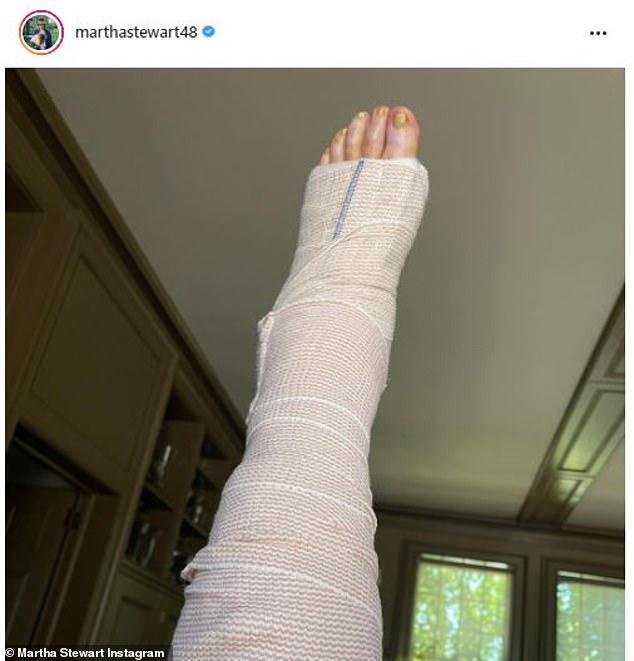 Martha Stewart đang được chữa trị khi cô ấy hồi phục sau cuộc phẫu thuật kéo dài ba giờ sau khi đứt gân Achilles