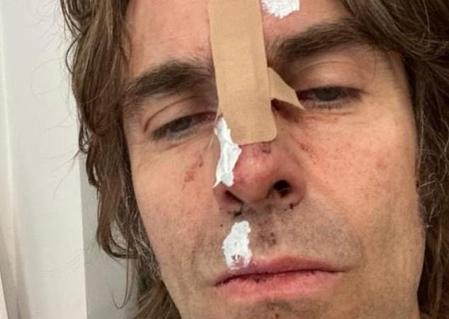 'Có ảnh bìa cho album sắp phát hành': Liam Gallagher khiến người hâm mộ sốc với một bức ảnh tự sướng gây sốc vào thứ Hai khi anh tiết lộ rằng anh đã rơi khỏi máy bay trực thăng sau một bữa tiệc lễ hội Isle of Wight